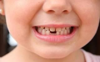 Кусочек молочного зуба остался в десне