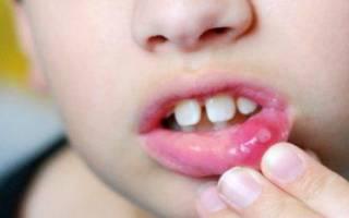 Вирусный стоматит у детей симптомы