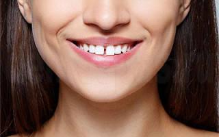 Диастема верхних зубов