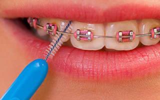 Ершики для брекетов oral b