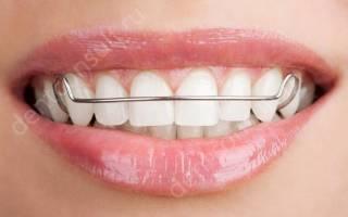Скобки для зубов