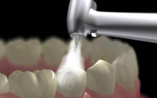 Виды пломб в стоматологии