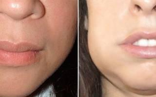 Имплантация зубов отек сколько держится