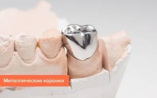 Коронки на зубы какие