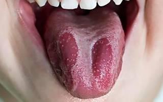 Кандидоз рта симптомы