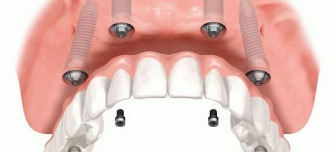 Сколько приживается имплант на верхней челюсти