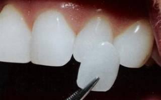 На сколько зубов ставят виниры