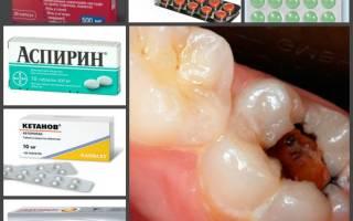 Чем остановить зубную боль в домашних условиях