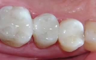Болит зуб после пломбирования канала