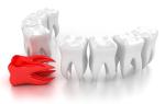 Можно ли при флюсе сохранить зуб