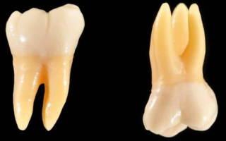 Моляры это какие зубы