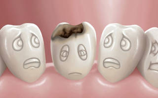 Почему на зубах белые пятна