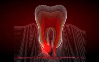 Сколько держится флюс после удаления зуба
