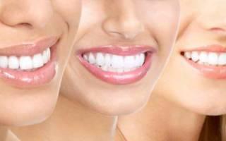 Как сделать виниры на зубы