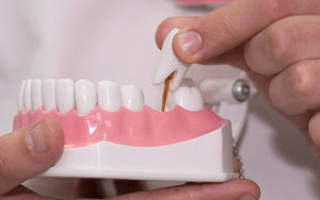 Варианты замены зубов