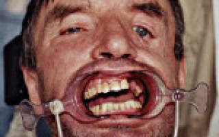 Перелом верхней челюсти лечение