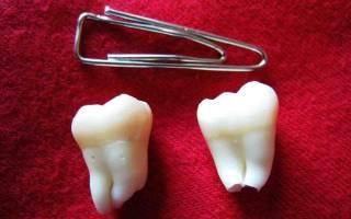 Чем снять воспаление десны зуб мудрости