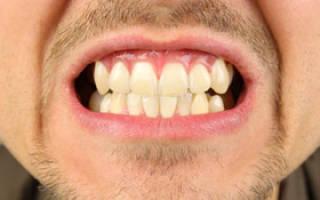 Лечение язвочек во рту