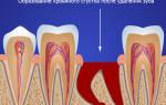После удаления корня зуба болит десна
