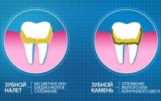Чем чистить зубные протезы из пластмассы