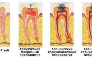 Классификация периодонтитов