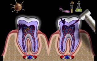 Воспаление верхушки корня зуба