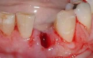 Сколько может кровить после удаления зуба