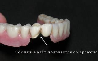 Чем почистить зубные протезы в домашних условиях