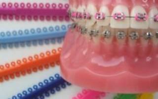 Ортодонтические резинки