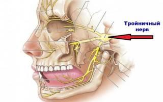 Болит голова и зуб