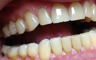 Как пломбируют передние зубы