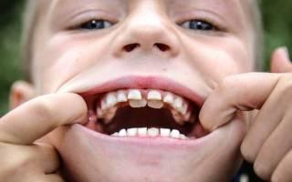 Почему не растут зубы у ребенка