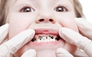 Покрытие серебром зубов у детей