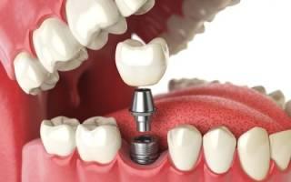 Из чего состоит зубной имплант