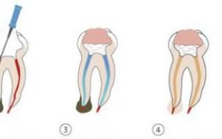 После удаления нерва болит зуб при нажатии