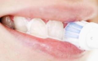 Кровоточивость десен при чистке зубов