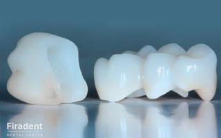 Цирконий в стоматологии