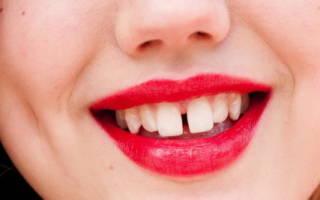 Дырка между зубами