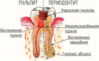 После имплантации зуба на десне появился гнойник