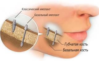 Базальтовая имплантация зубов