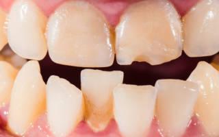 Искривление зубов