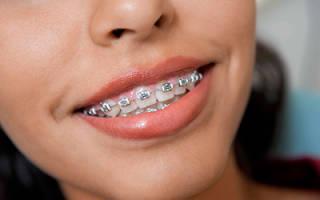 Сколько болят зубы после установки брекетов