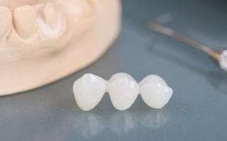 Зубные протезы из циркония