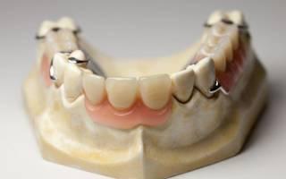 Вставной зуб бабочка