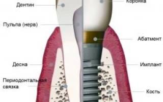 Имплантанты зубов что это такое