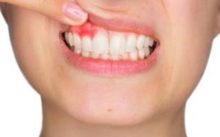 Шишка на десне возле зуба