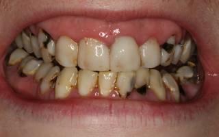 Методы лечения кариеса зубов