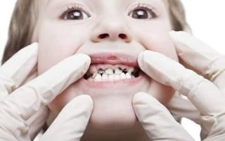 Почему чернеют зубы у ребенка