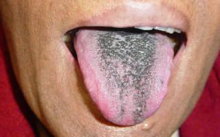 Почему почернел язык