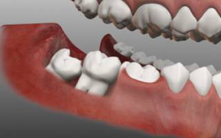 Удаление ретинированных и дистопированных зубов что это